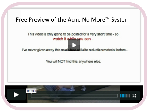how to get rid of acne video