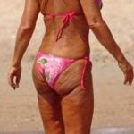 Bad Cellulite on a Great Body